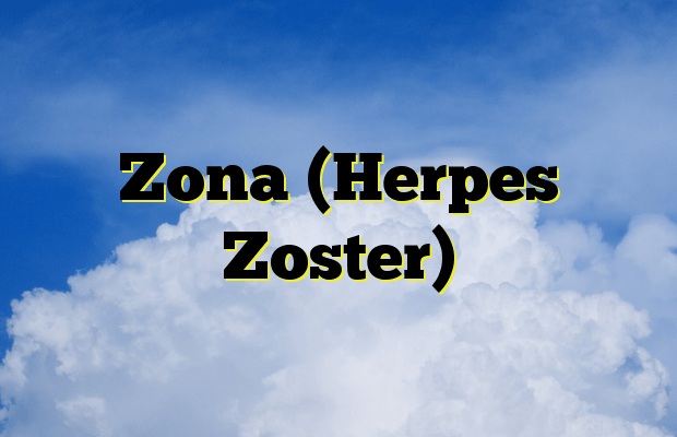 Zona (Herpes Zoster)